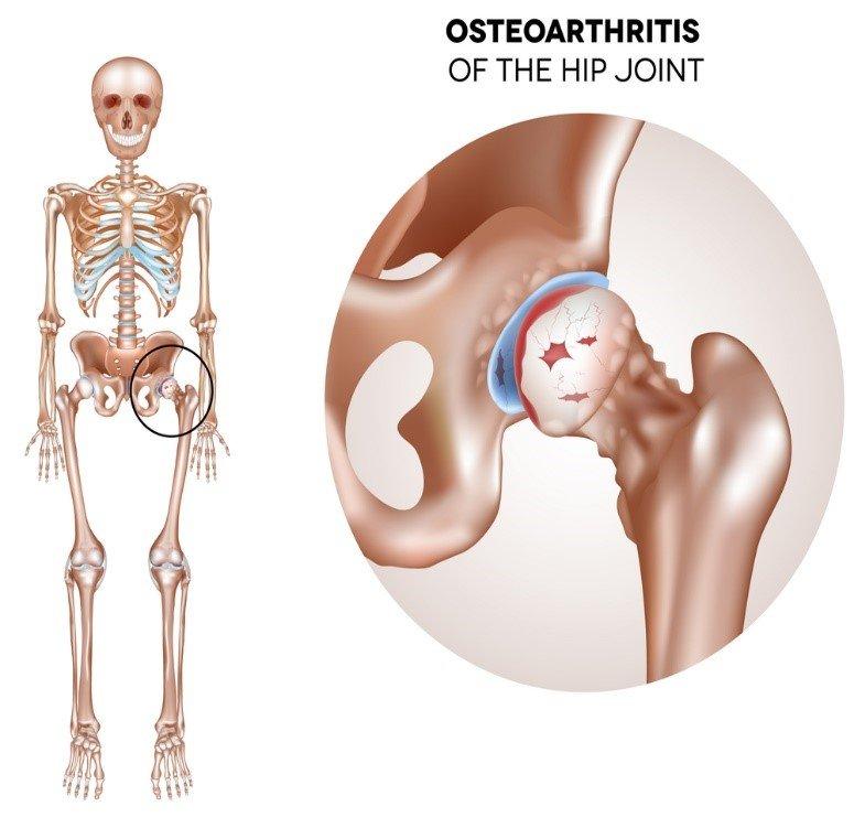 Что такое эрозия суставов эндопротезирование т б сустава в костроме сайт