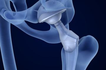 החלפת מפרק ירך בשיטה קדמית – דברים שכדאי לדעת