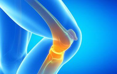 החלפה חלקית של מפרק הברך