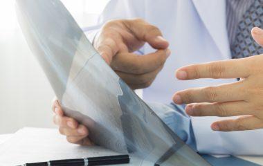 טיפול באוסטאוארטריטיס, אילו שאלות כדאי לשאול את הרופא?
