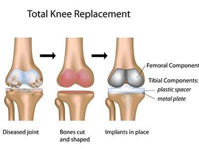 החלפת מפרק הברך, שלבים בתהליך הניתוחי